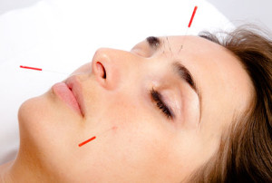 Acupuncture cosmetic facial rejuvenation cork city