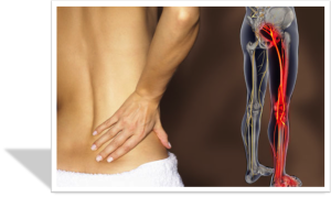 Sciatica pain cork acupuncture