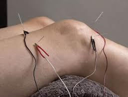 sports injuries acupuncture cork pain relief